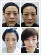 """武汉五洲整形医院:逆龄美眼,让你""""眼""""出奇迹"""